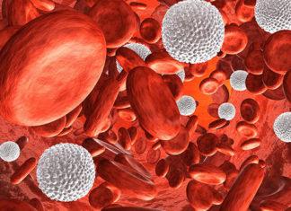 Metody usuwania rozszerzonych naczyń krwionośnych